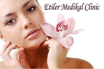 Medical Clinic �stanbul'da Leke Tedavisi ve Cilt Yenileme (Lazer Carbon Peeling Tedavisi) ��lemi Tek Seans 350 TL Yerine 149 TL!