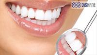 Bahçelievler Özel Dişhane Ağız ve Diş Sağlığı Merkezi'de Lazer ile Diş Beyazlatma İşlemi!